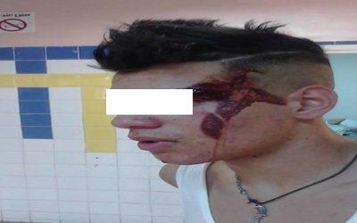 تلميذ يحاول الانتحار بعد إعتداء مدير مؤسسة تعليمية عليه بفاس