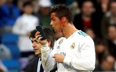 كريستيانو رونالدو يتعرض لإصابة خطيرة في وجهه