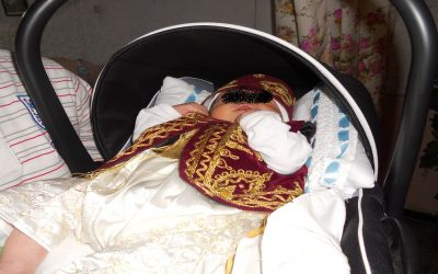 عملية ختان تودي بحياة طفل وترسل شقيقه إلى الإنعاش
