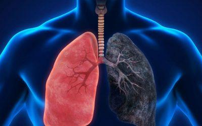تناول المزيد من الألياف واللبن يخفض فرص الإصابة بسرطان الرئة