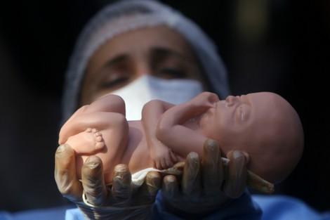 المجلس العلمي يؤكد تمسكه بالخيط الأبيض في قضية الإجهاض