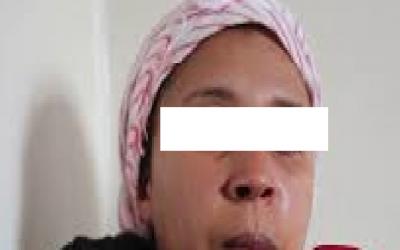"""إعتقال الشاب الذي """"شرمل"""" خطيبته بــ 22 """"غرزة"""" في وجهها"""