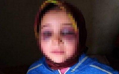 """إبتدائية تارودانت تقضي بتأجيل النظر في قضية تعنيف التلميذة """"مريم"""""""