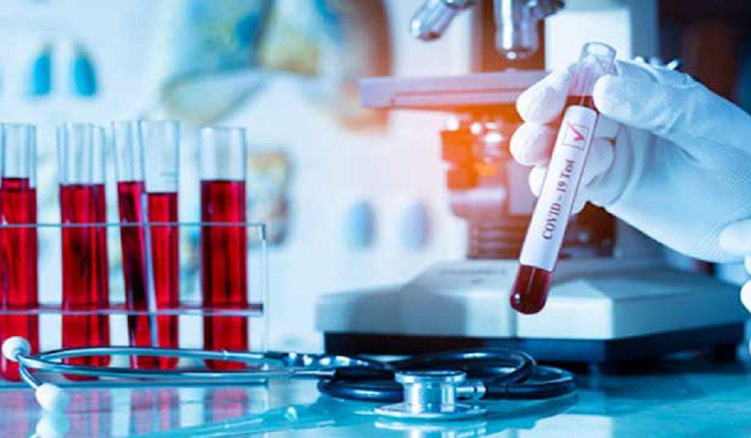 37 حالة جديدة لفيروس كورونا بجهة العيون ترفع العدد الى مايقارب 700حالة