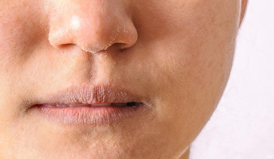 3 حيل للتخلص من جفاف الجلد في الشتاء