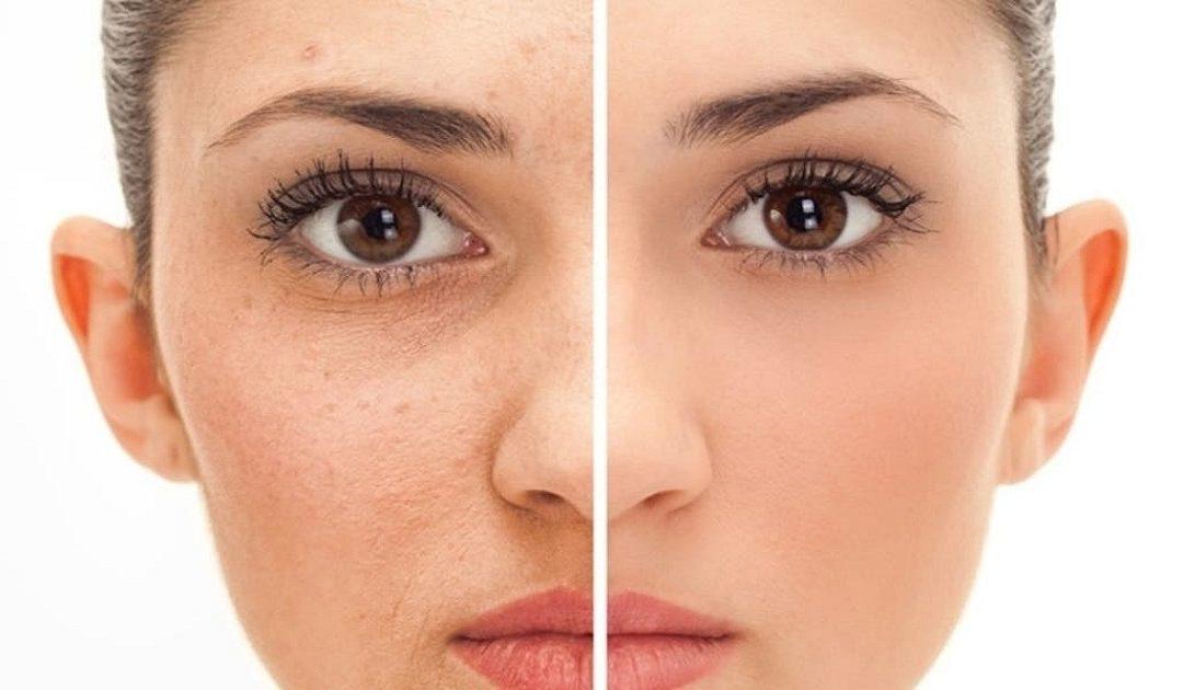 لإزالة الشوائب المتراكمة على الوجه…5 طرق تمنحك بشرة نضرة ومثالية
